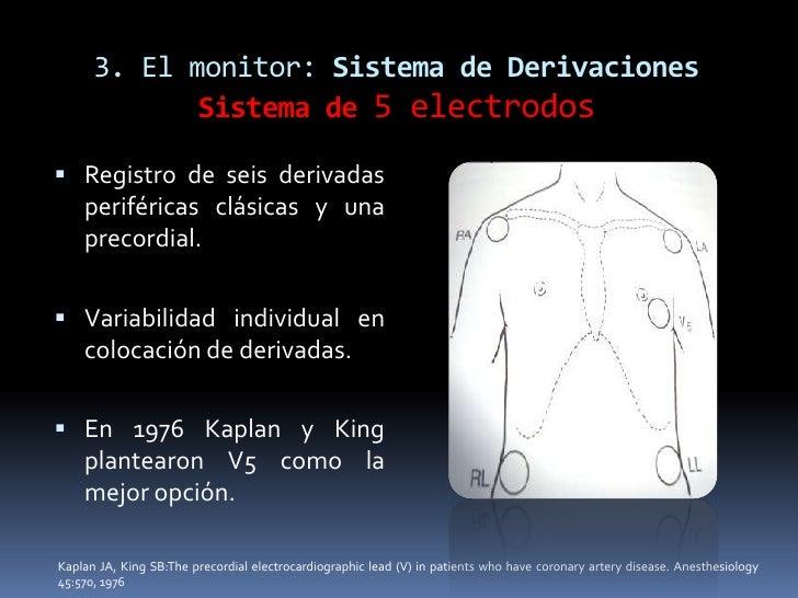 sistema cardio