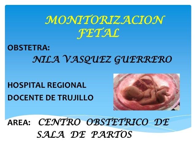 MONITORIZACIONFETALOBSTETRA:NILA VASQUEZ GUERREROHOSPITAL REGIONALDOCENTE DE TRUJILLOAREA: CENTRO OBSTETRICO DESALA DE PAR...