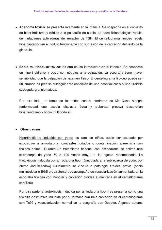 Tirotoxicosis en la infancia: reporte de un caso y revisión de la literatura. 32  Adenoma tóxico: se presenta raramente e...