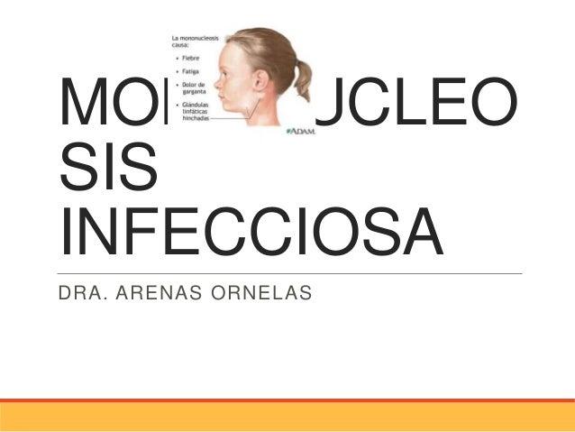 MONONUCLEOSISINFECCIOSADRA. ARENAS ORNELAS