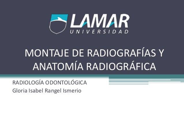 MONTAJE DE RADIOGRAFÍAS Y ANATOMÍA RADIOGRÁFICA RADIOLOGÍA ODONTOLÓGICA Gloria Isabel Rangel Ismerio
