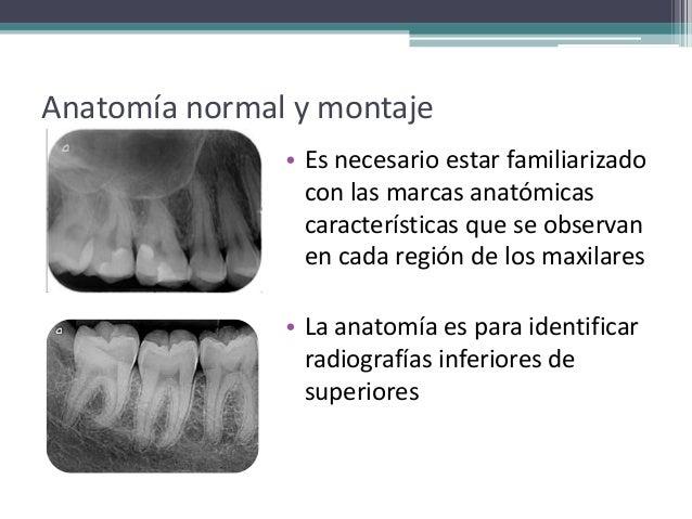 Montaje de radiografías y anatomía radiográfica