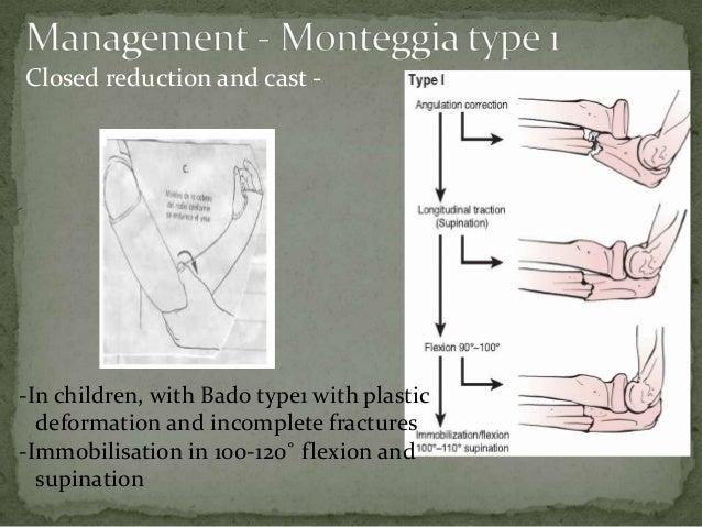 Monteggia fracture dislocation_UTSAV
