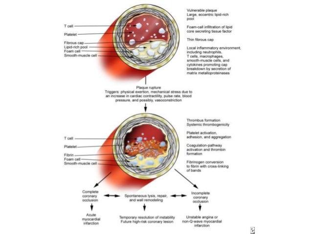 • Тогтвортой бус бахын хараахан бөглөрөл үүсгээгүй тромбо нь түр зуурын буюу цаашид тогтсон бүрэн бөглөрөл үүсгэж болдог. ...