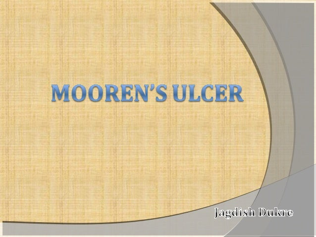  First described in detail as a clinical entity by  Mooren in 1867.   Mooren's ulcer is a chronic, painful, peripheral  ...
