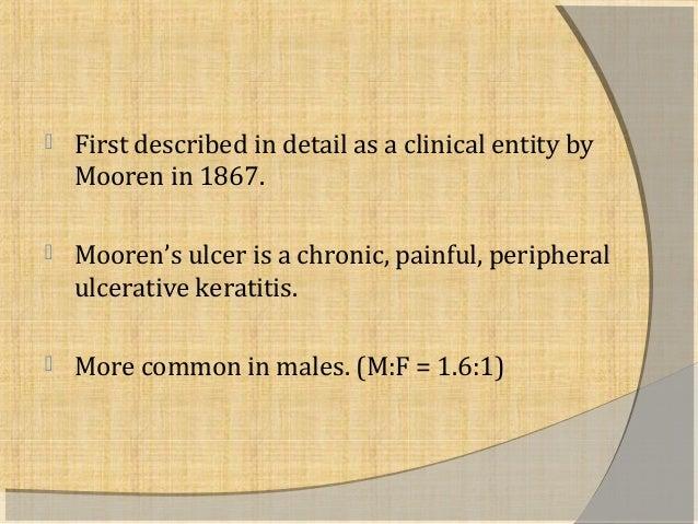 Mooren's ulcer Slide 2