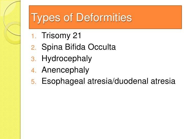 Types of Deformities1.   Trisomy 212.   Spina Bifida Occulta3.   Hydrocephaly4.   Anencephaly5.   Esophageal atresia/duode...