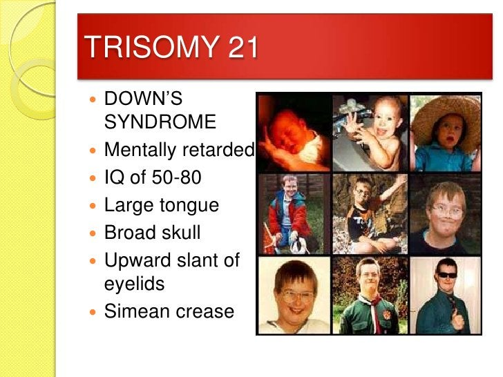 TRISOMY 21   DOWN'S    SYNDROME   Mentally retarded   IQ of 50-80   Large tongue   Broad skull   Upward slant of    ...