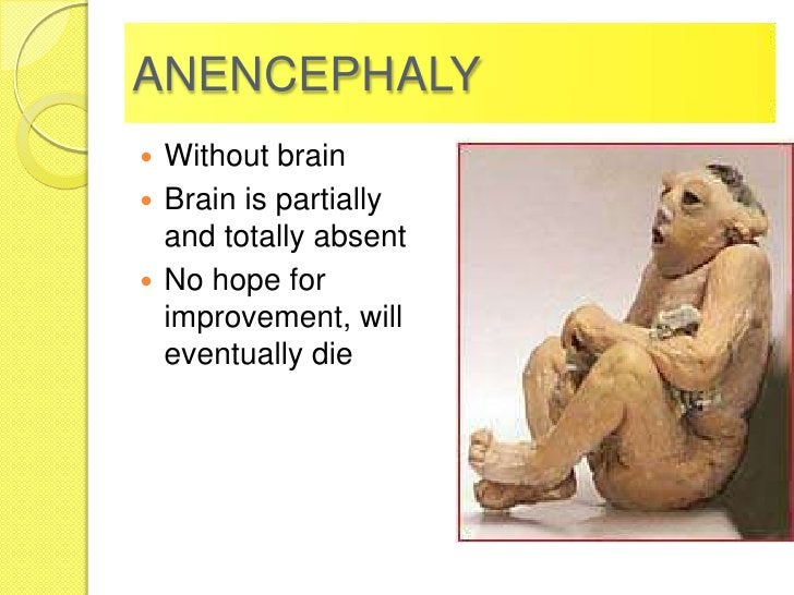 ANENCEPHALY Without brain Brain is partially  and totally absent No hope for  improvement, will  eventually die