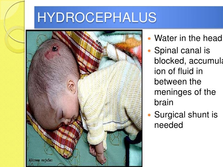 HYDROCEPHALUS            Water in the head            Spinal canal is             blocked, accumula             ion of f...