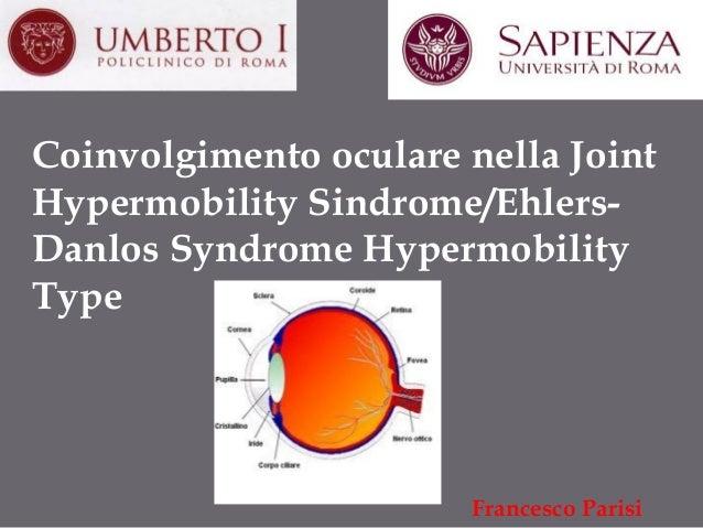 Coinvolgimento oculare nella Joint Hypermobility Sindrome/EhlersDanlos Syndrome Hypermobility Type  Francesco Parisi