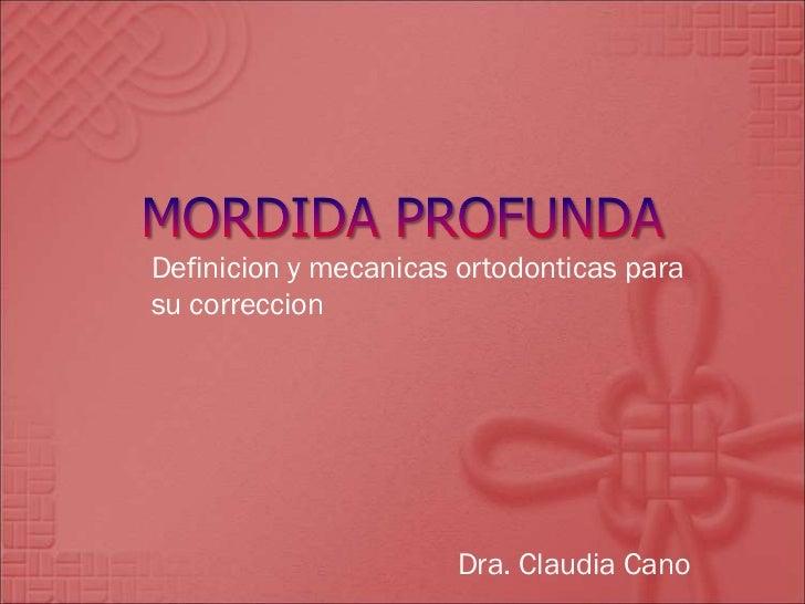 Definicion y mecanicas ortodonticas para su correccion Dra. Claudia Cano