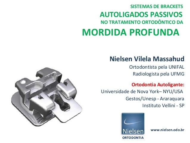 Nielsen Vilela Massahud Ortodontista pela UNIFAL Radiologista pela UFMG Ortodontia Autoligante: Universidade de Nova York–...