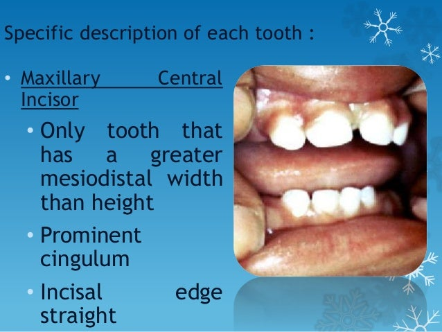 Specific description of each tooth : • Mandibular Lateral Incisor • Similar form to central • Usually longer • Incisal edg...