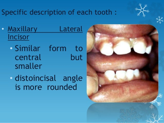 Specific description of each tooth : • Maxillary Canine • Crown constricted at cervical region • Well developed, sharp cus...