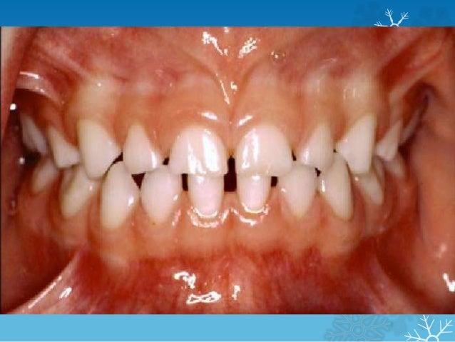primary teeth .