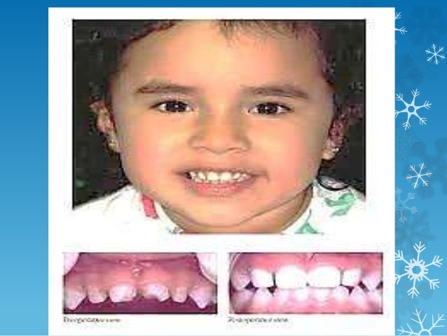 General description of primary teeth: Roots : • The roots of primary anterior teeth are narrow mesiodistally • The roots o...