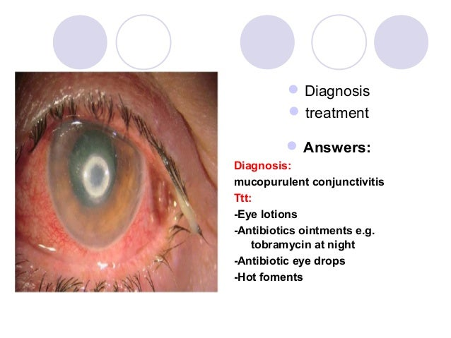  Diagnosis          treatment          Answers:Diagnosis:mucopurulent conjunctivitisTtt:-Eye lotions-Antibiotics ointme...