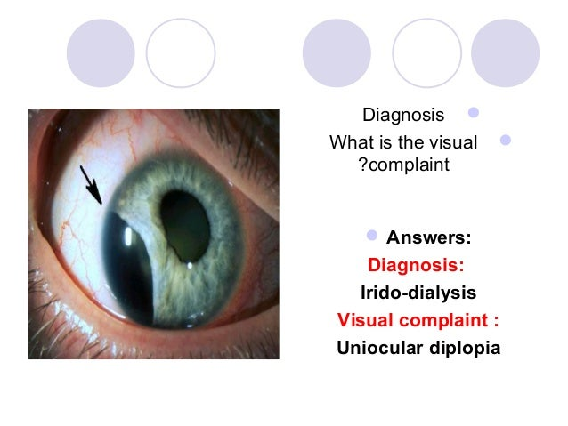 Diagnosis What is the visual   ?complaint    Answers:   Diagnosis:  Irido-dialysisVisual complaint :Uniocular diplopia