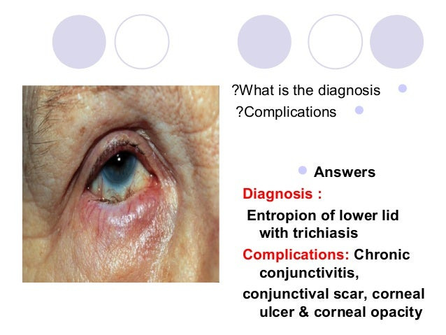 ?What is the diagnosis    ?Complications           Answers Diagnosis :  Entropion of lower lid   with trichiasis Compli...