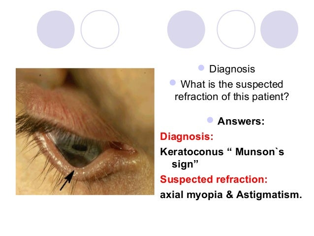 """ Diagnosis  What is the suspected  refraction of this patient?          Answers:Diagnosis:Keratoconus """" Munson`s  sign""""..."""