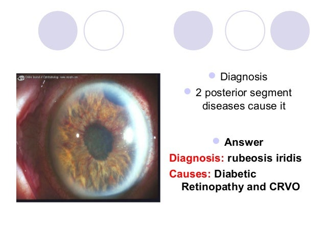  Diagnosis   2 posterior segment     diseases cause it         AnswerDiagnosis: rubeosis iridisCauses: Diabetic  Retino...
