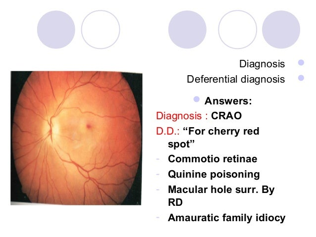 """Diagnosis         Deferential diagnosis           Answers:Diagnosis : CRAOD.D.: """"For cherry red  spot""""- Commotio retina..."""