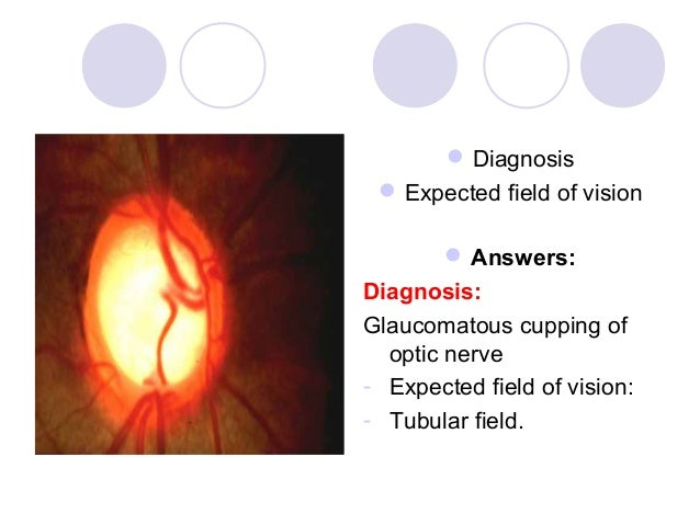  Diagnosis  Expected field of vision         Answers:Diagnosis:Glaucomatous cupping of  optic nerve- Expected field of ...