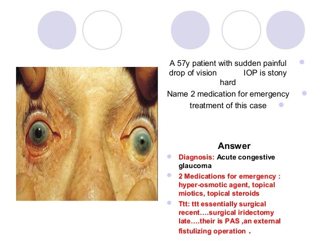A 57y patient with sudden painful    drop of vision        IOP is stony               hardName 2 medication for emergency...