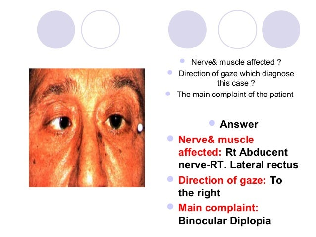 Nerve& muscle affected ? Direction of gaze which diagnose              this case ? The main complaint of the patient  ...