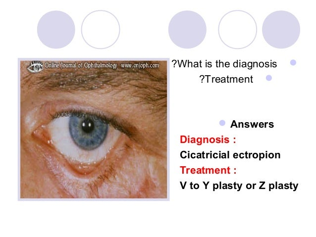?What is the diagnosis       ?Treatment           Answers Diagnosis : Cicatricial ectropion Treatment : V to Y plasty o...