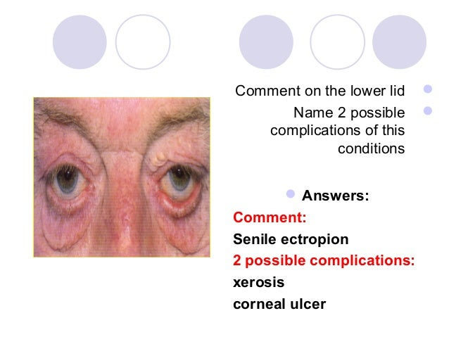Comment on the lower lid          Name 2 possible          complications of this             conditions        Answers:...