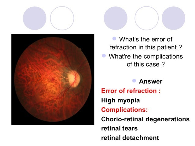  Whats the error of  refraction in this patient ? Whatre the complications        of this case ?            AnswerError...