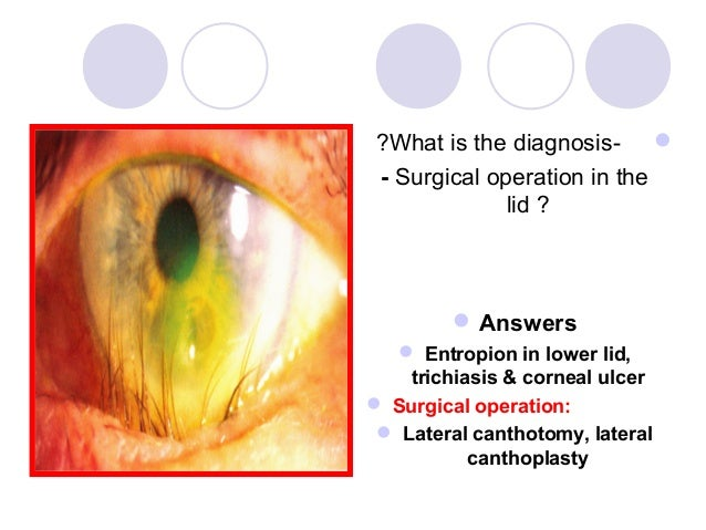 ?What is the diagnosis-  - Surgical operation in the              lid ?          Answers   Entropion in lower lid,    t...