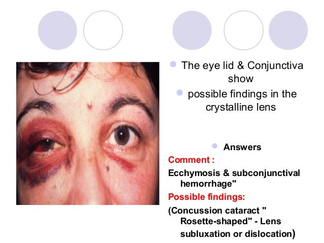  The eye lid & Conjunctiva            show  possible findings in the      crystalline lens           AnswersComment :Ec...