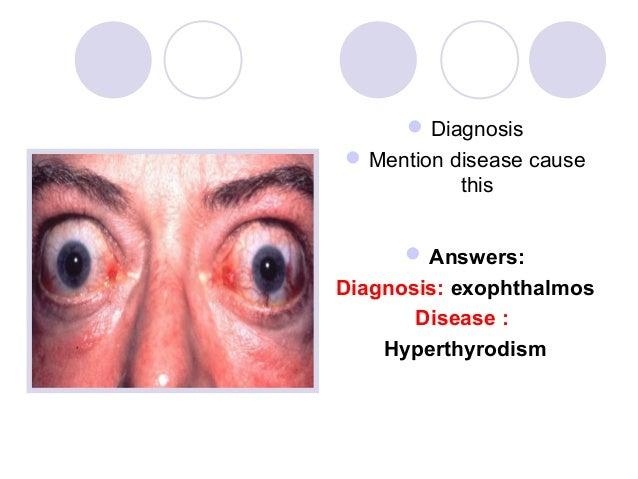  Diagnosis Mention disease cause           this       Answers:Diagnosis: exophthalmos       Disease :    Hyperthyrodism