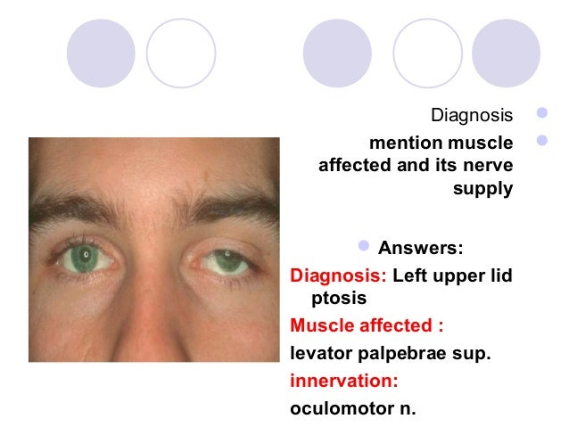 Diagnosis             mention muscle        affected and its nerve                   supply        Answers:Diagnosis: L...
