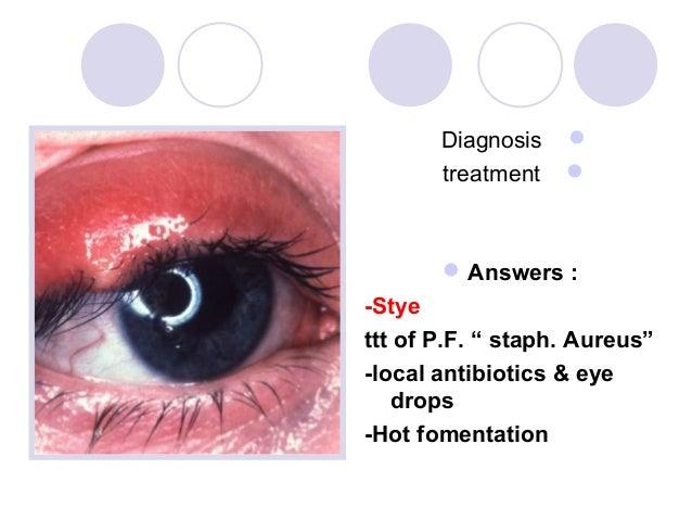 "Diagnosis          treatment           Answers :-Styettt of P.F. "" staph. Aureus""-local antibiotics & eye   drops-Hot f..."