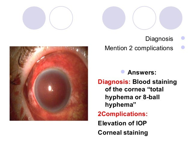 """Diagnosis      Mention 2 complications           Answers:Diagnosis: Blood staining  of the cornea """"total  hyphema or 8-..."""