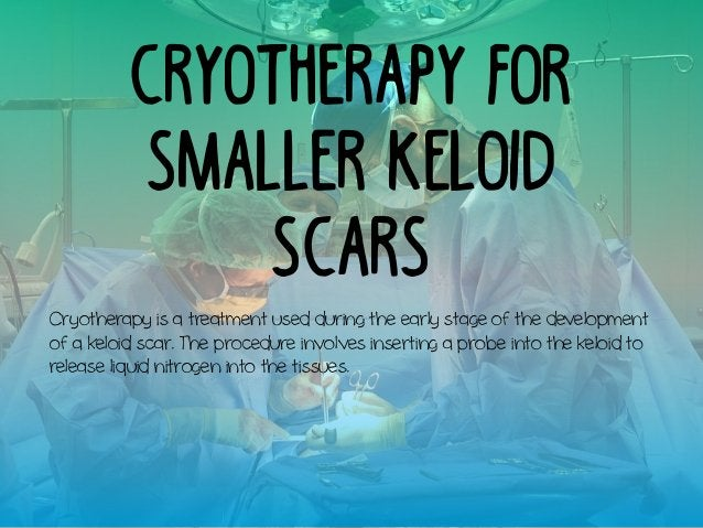 Cryotherapy for Smaller Keloid Scars Cryotherapy is a treatment used during the early stage of the development of a keloid...