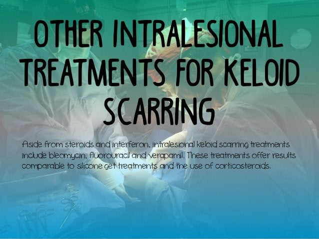 Other Intralesional Treatments for Keloid Scarring Aside from steroids and interferon, intralesional keloid scarring treat...