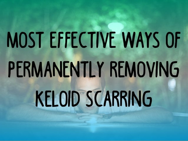 Most Effective Ways of Permanently Removing Keloid Scarring