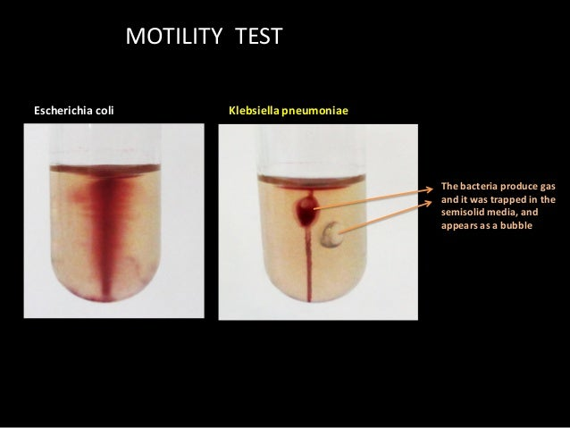 bacteria and motility medium tubes Liquid media are available for use in test-tubes, bottles or flasks in liquid medium, bacteria grow uniformly producing general turbidity certain demonstrating bacterial motility and separating motile from non-motile strains (u-tube and cragie's tube.