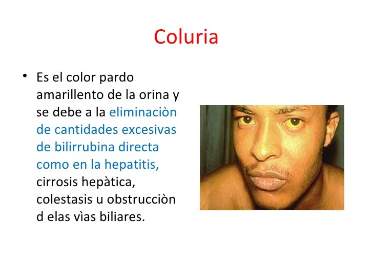 COLURIA DEFINICION PDF DOWNLOAD