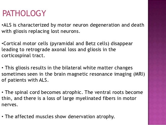 Does motor neurone disease affect the brain for What is motor neurone disease symptoms
