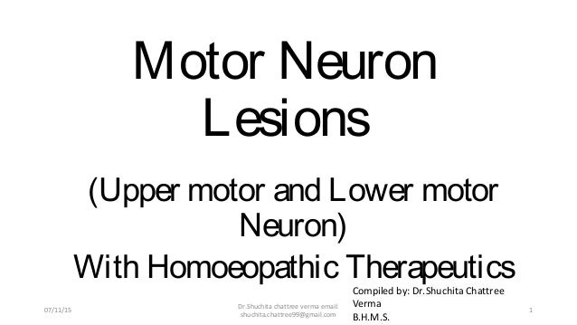 Motor Neuron Lesions (Upper motor and Lower motor Neuron) With Homoeopathic Therapeutics Compiled by: Dr.Shuchita Chattree...