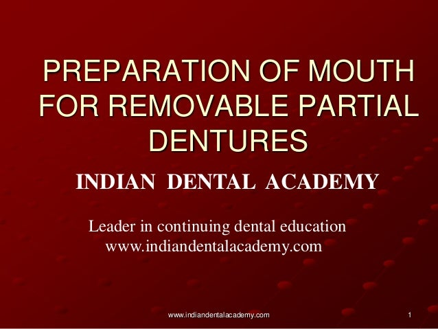 PREPARATION OF MOUTH FOR REMOVABLE PARTIAL DENTURES INDIAN DENTAL ACADEMY Leader in continuing dental education www.indian...