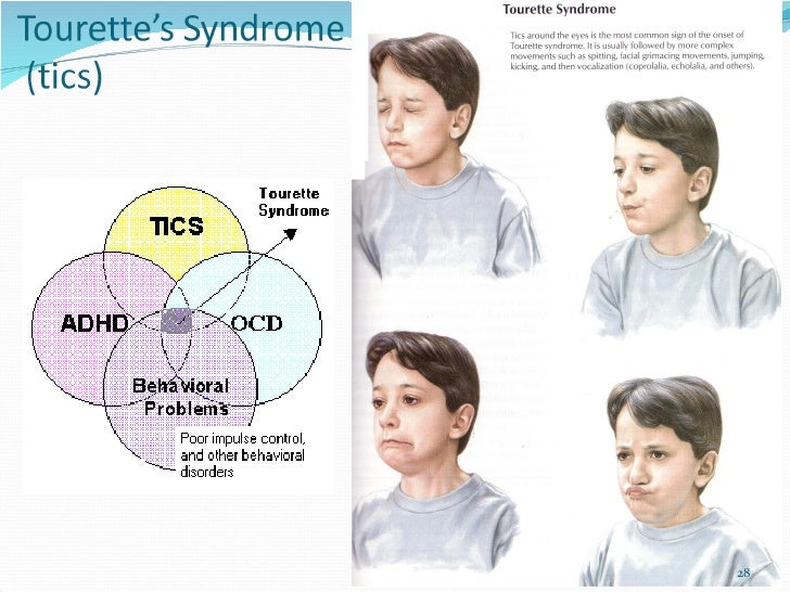 misconception and misdiagnosis of tourette syndrome Misdiagnosis of tourette syndrome including diagnosis issues, alternative diagnoses, differential diagnoses, and misdiagnosis.