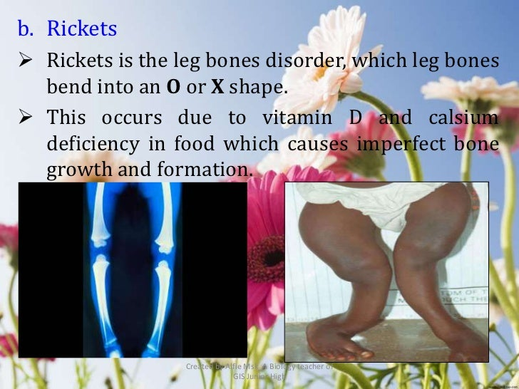b. Rickets Rickets is the leg bones disorder, which leg bones  bend into an O or X shape. This occurs due to vitamin D a...