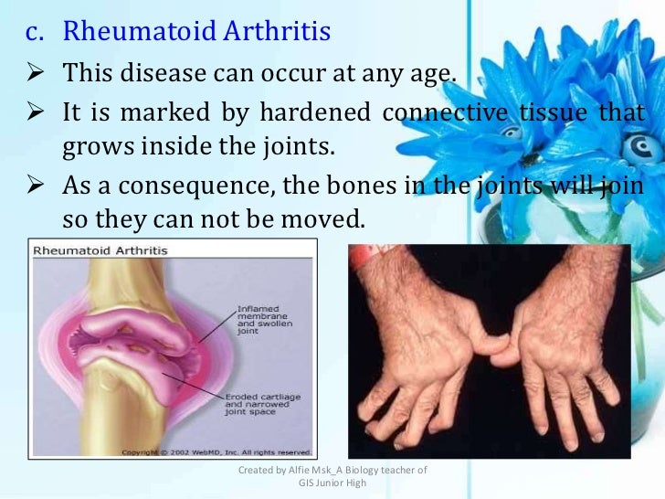 c. Rheumatoid Arthritis This disease can occur at any age. It is marked by hardened connective tissue that  grows inside...